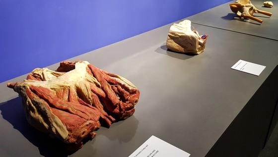 Yêu cầu báo cáo về triển lãm cơ thể con người đang gây tranh cãi ảnh 1