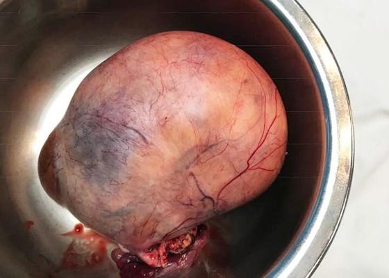 """Phẫu thuật thành công cắt khối u nặng hơn 1kg sau 30 năm """"chung sống"""" ảnh 1"""