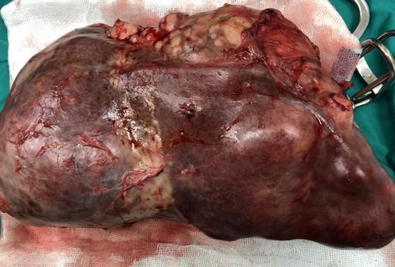 Phẫu thuật cắt thành công khối u lá lách gần 3kg ảnh 2