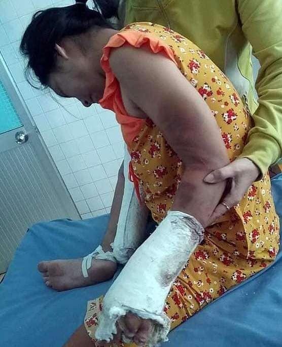 Khởi tố kẻ đánh gãy chân, tay thai phụ ảnh 1