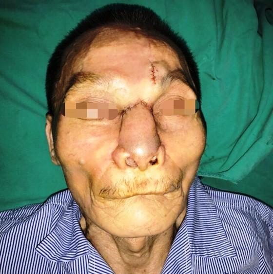 Tái tạo thành công mũi, má cho bệnh nhân bị ung thư biến dạng khuôn mặt ảnh 1