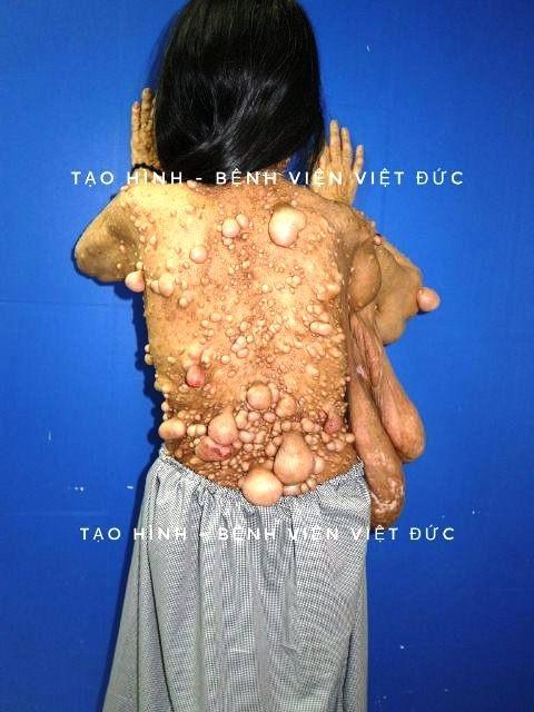 Phẫu thuật cho người phụ nữ có hàng trăm khối u xơ trên người ảnh 1