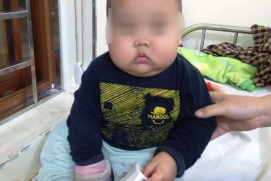 Uống thuốc có Corticoid, bé trai 17 tháng tuổi tăng 3 kg nhưng  bị suy thượng thận cấp! ảnh 1