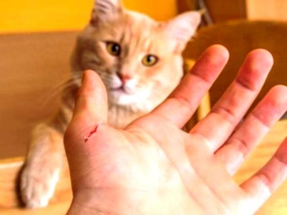 Cậu bé 11 tuổi tử vong vì mèo cào! ảnh 1