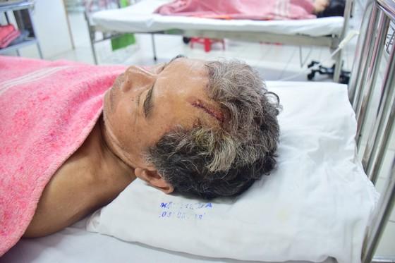 """Chủ tịch UBND tỉnh Thừa Thiên – Huế hứa xử nghiêm """"cát tặc"""" chém trọng thương người dân ảnh 2"""