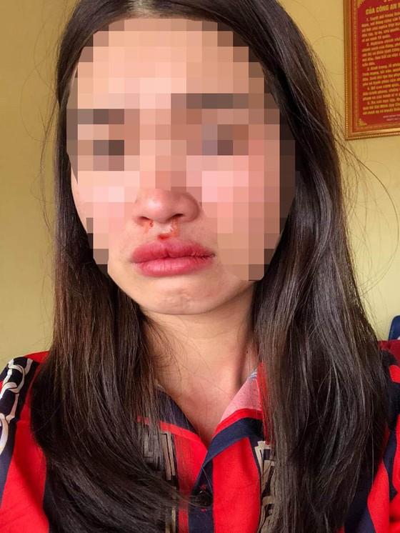 Nữ hành khách tố bị nhân viên nhà xe hành hung dã man ảnh 1