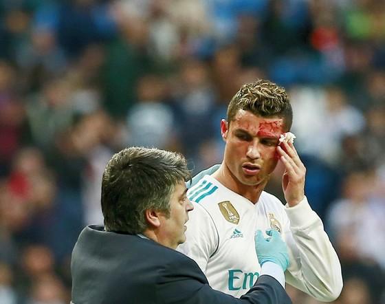 Ronaldo đổ máu vì dính gầm giày đối phương. Ảnh: Getty Images