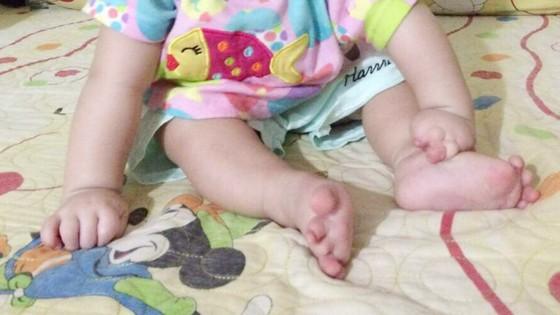 Vòng thắt bẩm sinh khiến bé gái sinh ra bị dính chặt ngón tay, chân ảnh 1