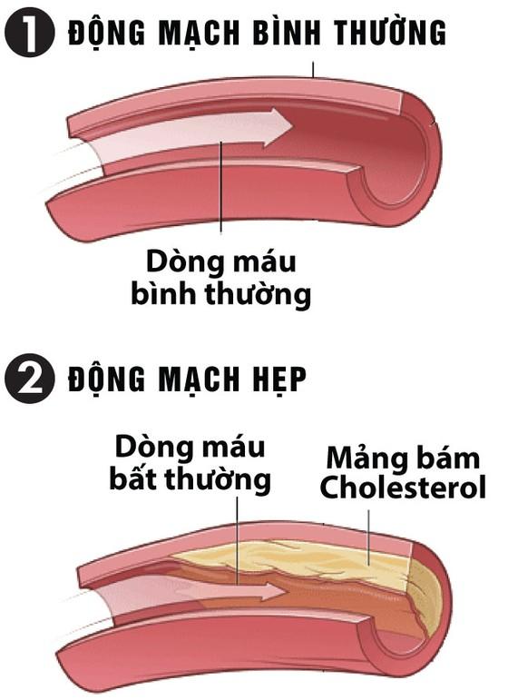 Ổn định huyết áp, tránh xa các biến chứng ảnh 1
