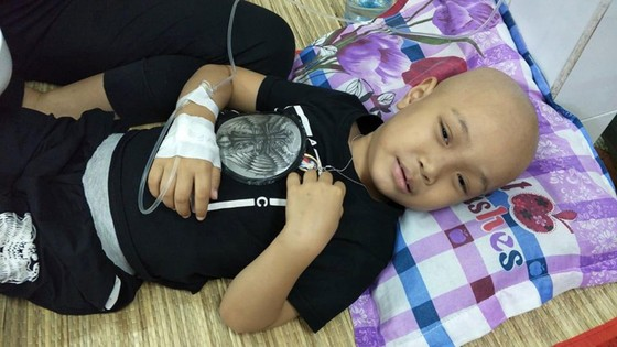 Cháu bé 5 tuổi bỗng dưng bị mù   ảnh 1