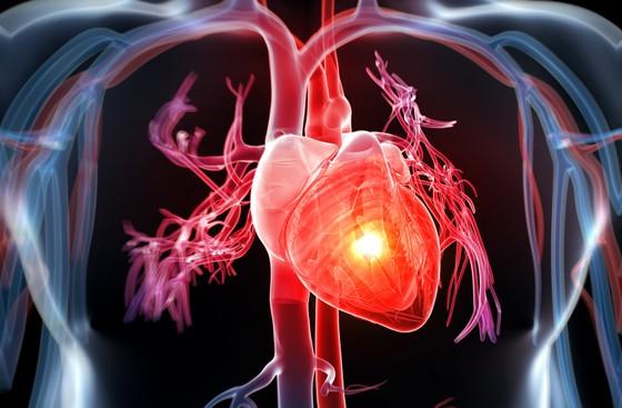 Trẻ hóa tuổi mắc bệnh tim mạch tại Việt Nam ảnh 1