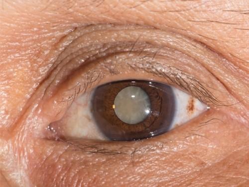 Một số bệnh thường gặp ở người cao tuổi và biện pháp phòng bệnh ảnh 3
