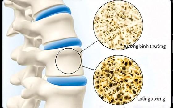 Điều trị loãng xương bằng Y dược cổ truyền ảnh 1