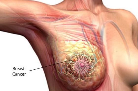 Tin vui cho các bệnh nhân ung thư vú di căn ảnh 2