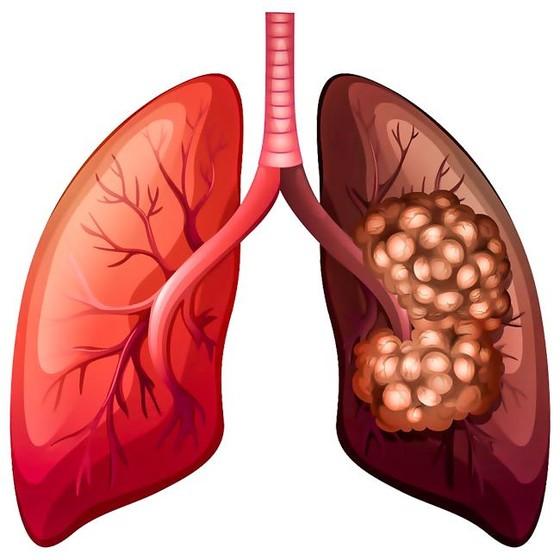 Ung thư phổi-Nguy cơ mắc bệnh cao ảnh 2