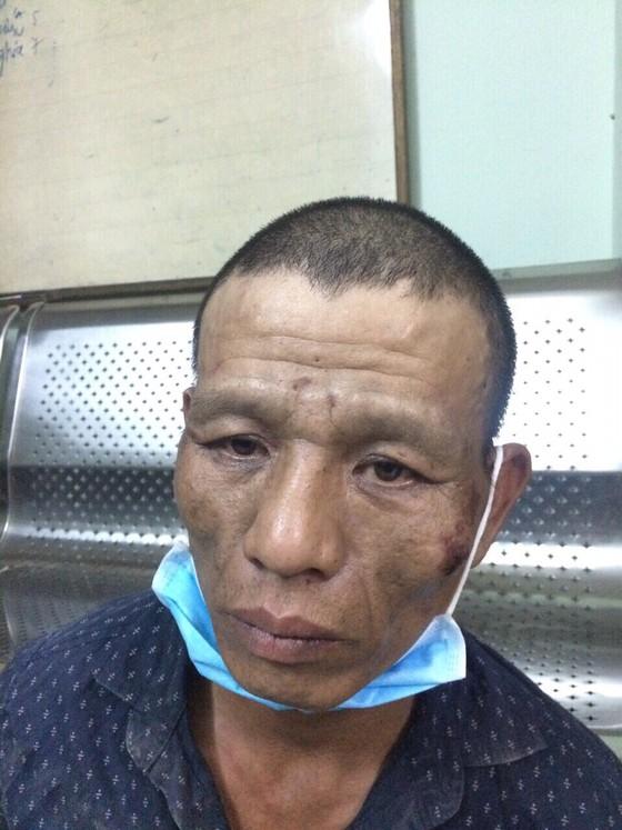 Hai tên cướp mang tiền án dùng dao chống trả trinh sát hình sự đặc nhiệm khi bị truy đuổi ảnh 5