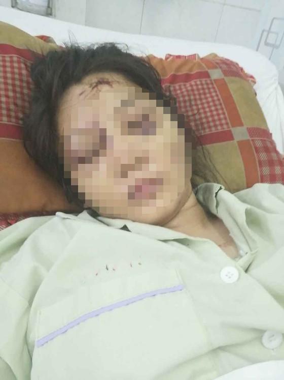 Bắt đối tượng cuối cùng trong vụ bắt cóc, tra tấn thai phụ đến sẩy thai  ảnh 2