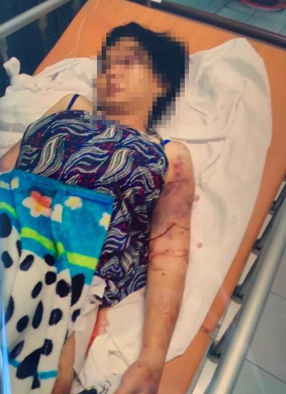 Hai anh em chủ mưu vụ bắt cóc, tra tấn thai phụ đến sẩy thai khai gì? ảnh 1