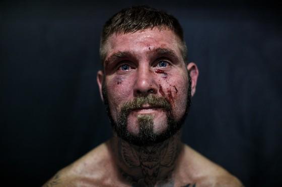 Đấu quyền không găng an toàn hơn… MMA và quyền Anh? ảnh 5