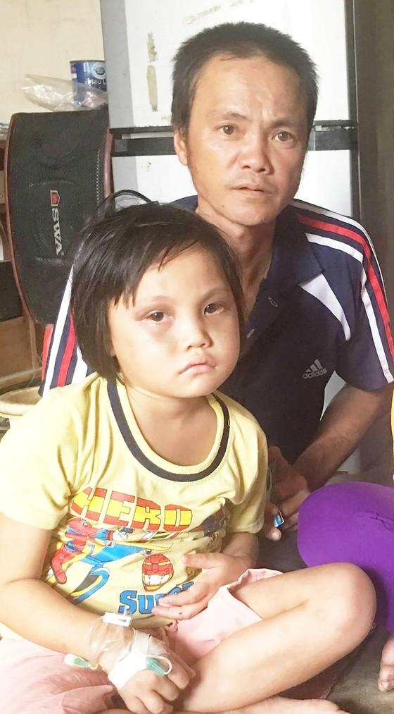 Vợ chồng nghèo mong có tiền chữa bệnh cho con ảnh 1