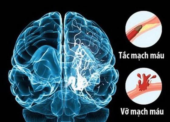 ĐBSCL: Mỗi năm có hơn 10.000 trường hợp đột quỵ ảnh 1