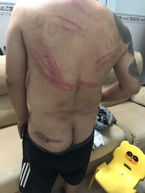 Truy xét nhóm côn đồ vào nhà dân tấn công khiến nhiều người bị thương ảnh 2