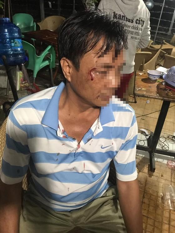 Truy xét nhóm côn đồ vào nhà dân tấn công khiến nhiều người bị thương ảnh 1