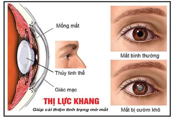 Các bệnh về mắt ảnh 2