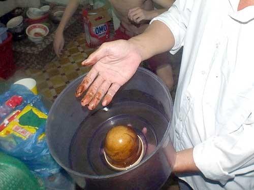Ổ vi trùng bồn nước ở các chung cư Sài Gòn ảnh 1