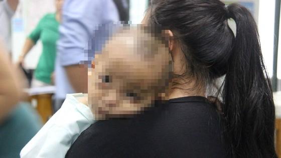 Viêm xoang gây biến chứng áp xe khổng lồ ở mắt bé trai 16 tháng ảnh 1