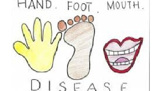 Hand-foot-mouth, measles cases running rampant in South Vietnam