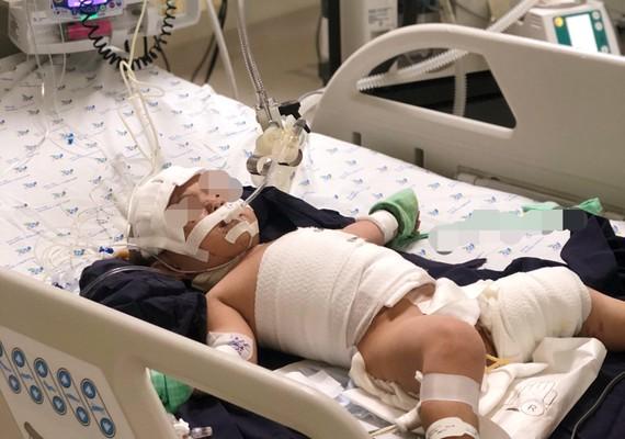 Hiện tại sức khỏe toàn trạng bé đã qua cơn nguy kịch, đang được theo dõi và chăm sóc đặc biệt tại Khoa Hồi sức tích cực.