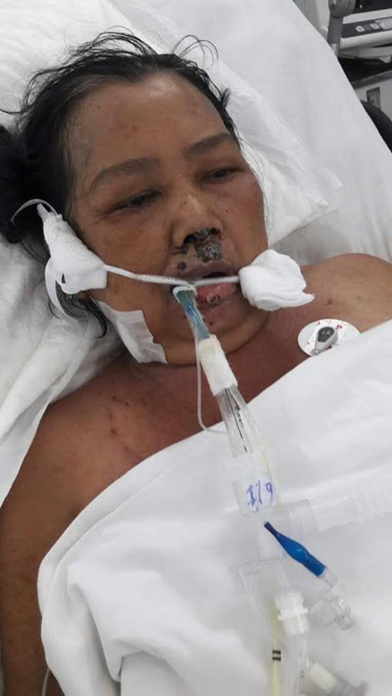 目前她住在阮知方醫院重症急救室3號病床接受醫治。