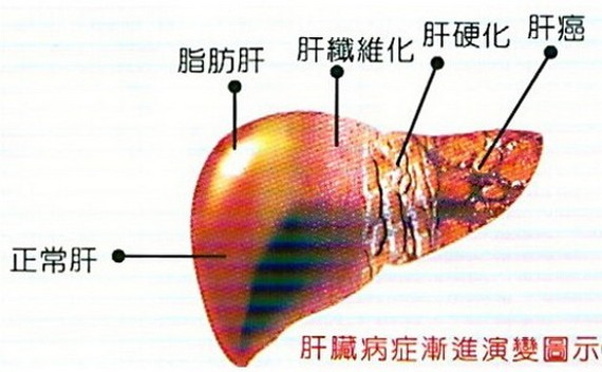 肝癌最常見的表現症狀| 健康-飲...