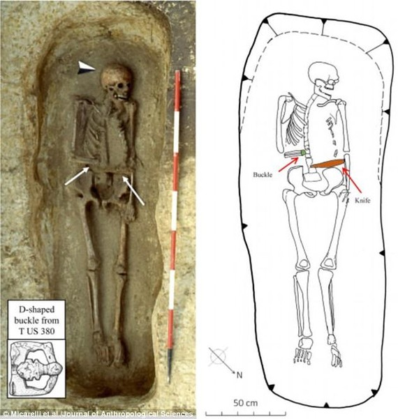 骸骨的一側手臂被截肢,並且斷腕處接上了一把匕首。