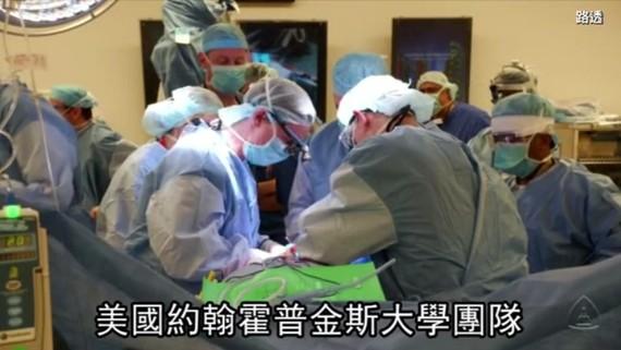 華人名醫完成首例陰莖移植手術。(圖源:視頻截圖)