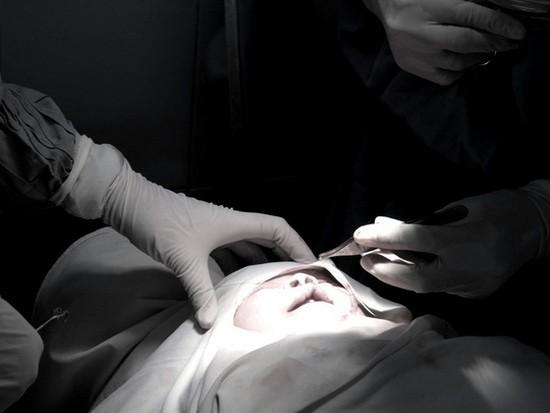 市醫療大學醫院從本月12至19日將展開為兔唇兒童免費診斷與施行手術活動。(示意圖源:互聯網)