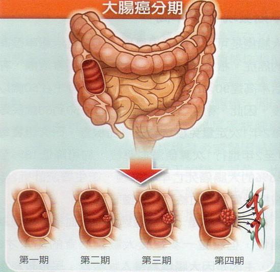 大腸癌病例五至六成發現較晚| 健...
