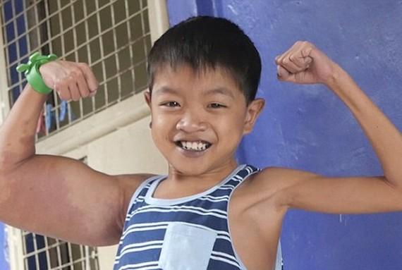 男孩因患怪病變成「大力水手」。(圖源:互聯網)