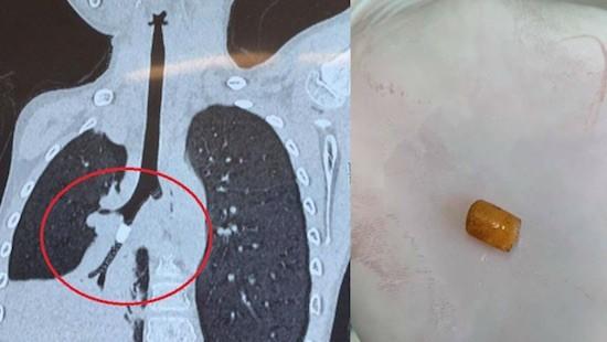 """左圖:胸部CT斷層掃描結果顯示支氣管內有圓柱形物體,導致支氣管分支S9外基底段完全堵塞。右圖:經支氣管鏡取出的""""塑料硬物""""。(圖源:志心)"""