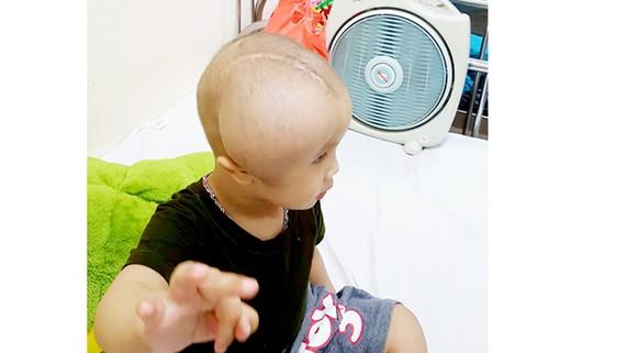 Bé Tạ Trung Kiên tại Bệnh viện Trung ương Huế sau 1 lần cắt bỏ khối u và 4 lần hóa trị