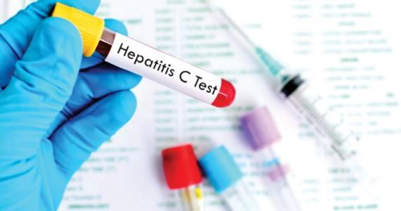 Giảm phí điều trị viêm gan C tại Mỹ Latinh