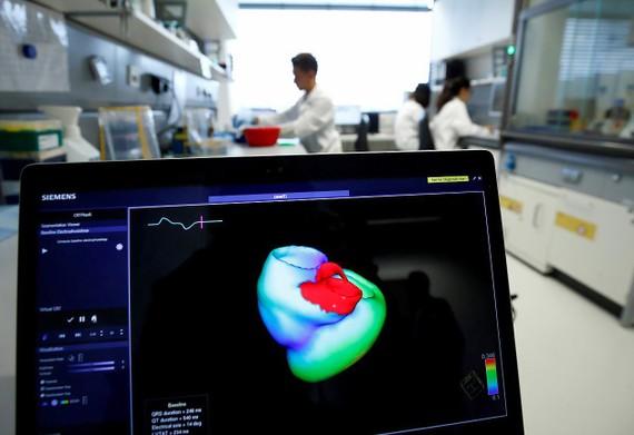 Công nghệ mới giúp cảnh báo sớm bệnh đau tim