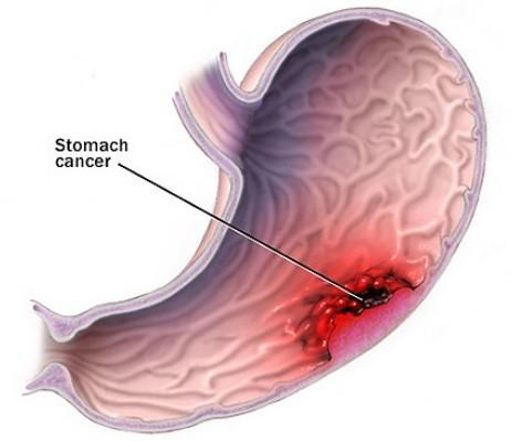Dấu hiệu phát hiện sớm ung thư dạ dày