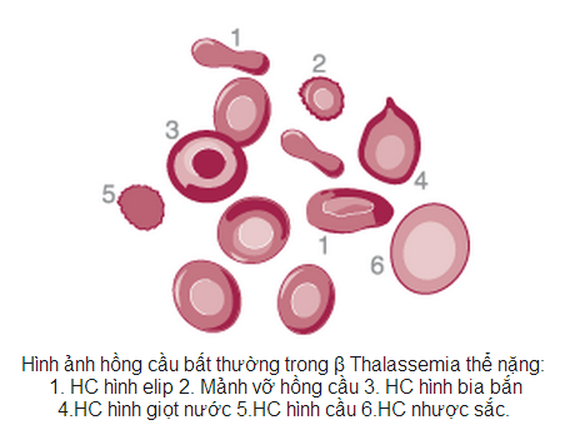 Woman with Thalassemia has a healthy son