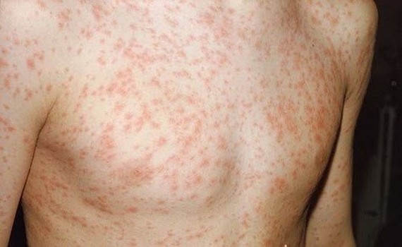 Measles outbreaks continue to escalate in South Vietnam