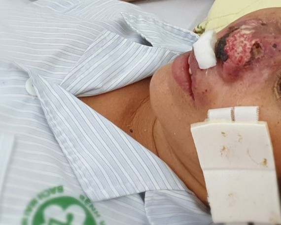 Four people die of rare Whitmore's disease in North Vietnam
