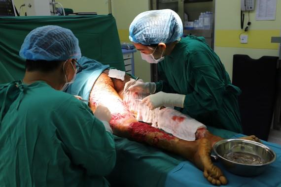 Các bác sĩ đang tiến hành cắt bỏ da bị hoại tử để tránh nhiễm trùng các khu vực lân cận