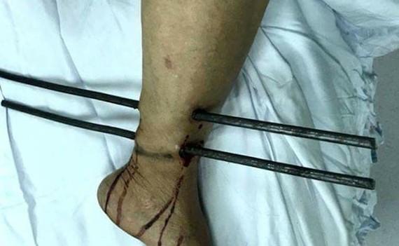 病人送至醫院時小腿被兩根鐵條插穿的情況。(圖源:K120醫院提供)