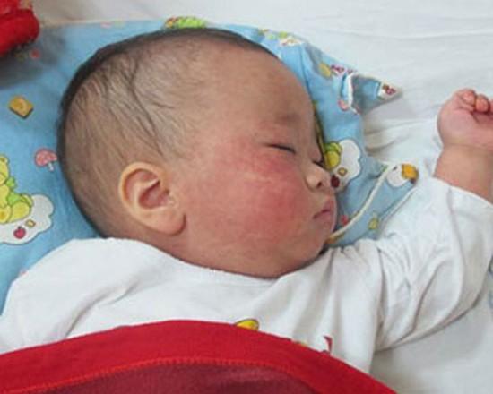 市衛生防疫中心:年初 60 幼兒罹患麻疹病。(示意圖源:互聯網)